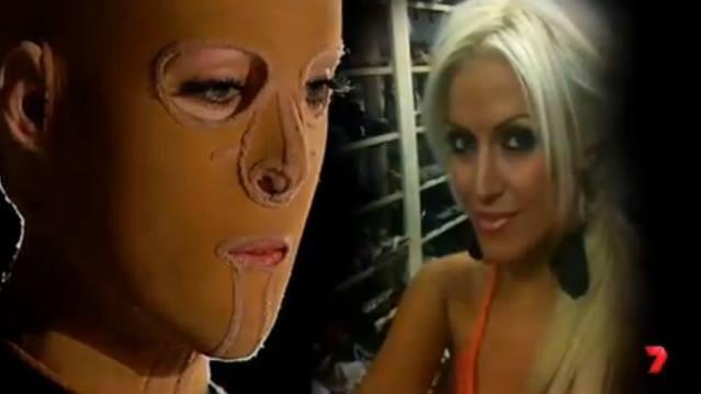 Australian Woman Survives Third-degree Burns, Unmasks Her New Face