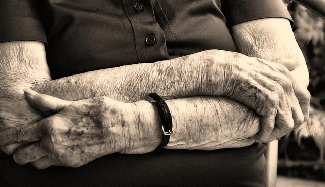 Alzheimer's disease, elderly, hands
