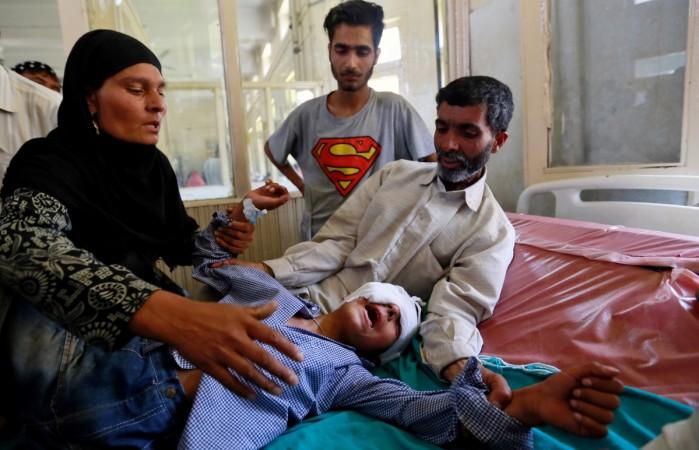 pellet guns Kashmir