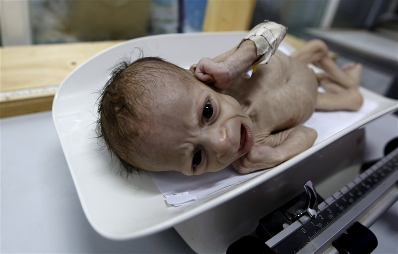 Starving children of Yemen,Starving children,UNICEF,Yemen,Yemen childrens,Horrifying images,Horrifying imagesof Childrens