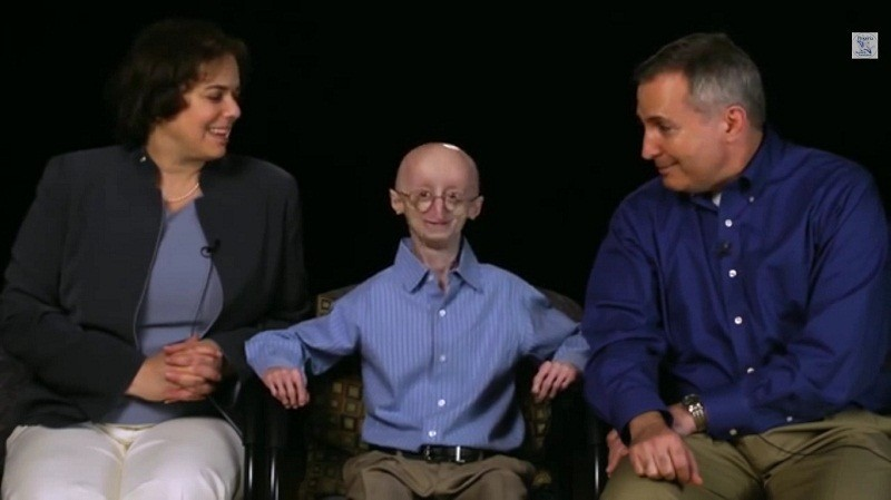 rest in peace sam berns the real life benjamin button