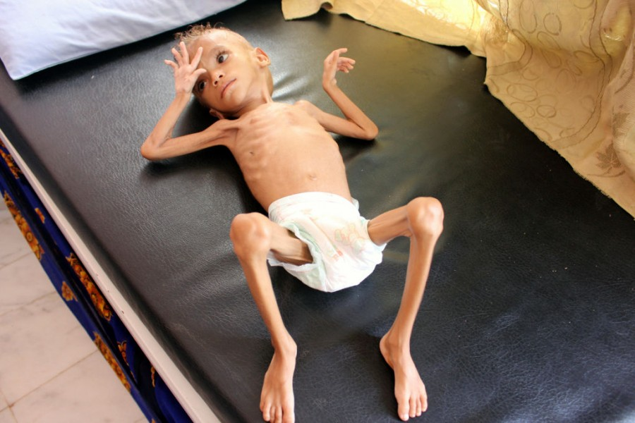 Yemeni children,Devastating pictures of Yemeni children,Yemeni children malnutrition,malnutrition Yemeni children,malnutrition children