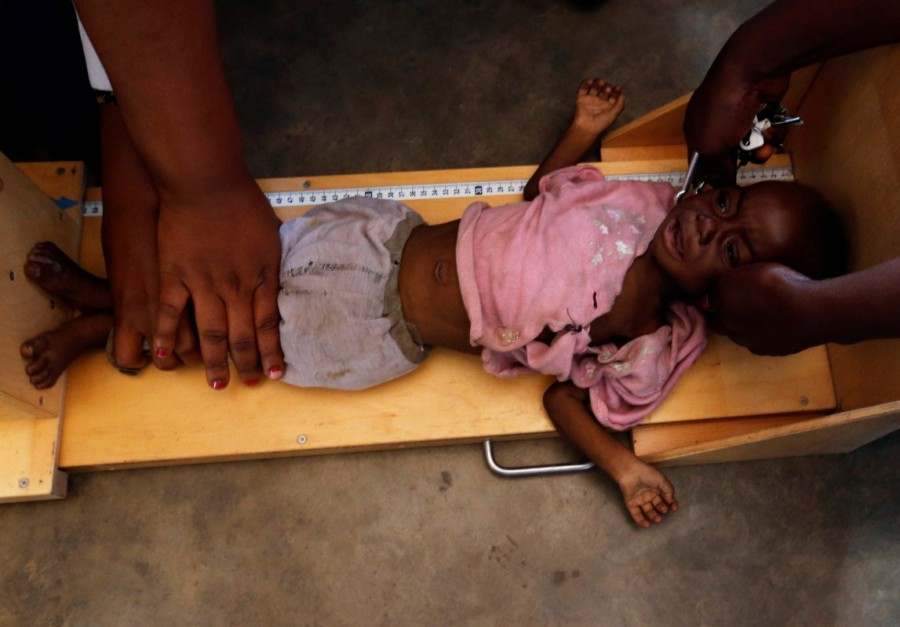 Hunger brings death after Congo violence,Congo violence,Mwene Ditu,Hunger brings death