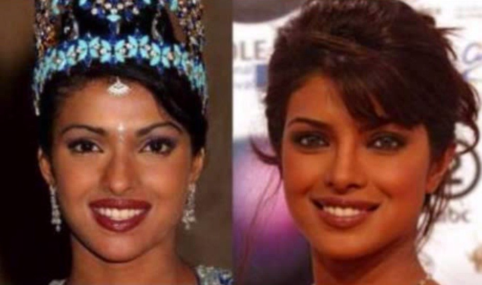 Celebs Before and After Cosmetic Surgery in Pictures