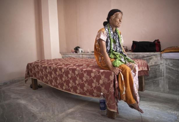 Acid attack sonali Help Sonali,