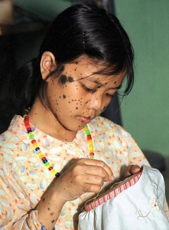Moles May Increase Skin Cancer Risk Ibtimes India
