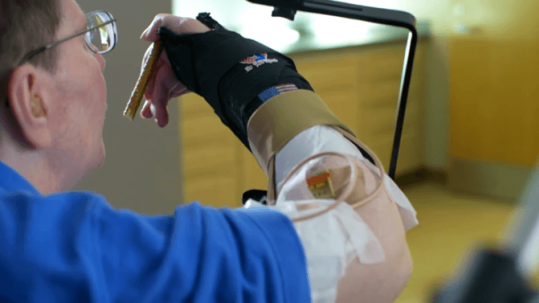 Quadriplegic moves his arm for the first time in eight years thanks to novel neuro-prosthesis