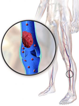 lower extremities deep vein thrombosis
